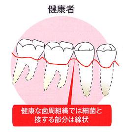 歯周病患者の歯の様子