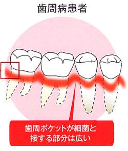 歯周病患者