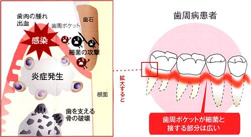 歯周ポケットの拡大図